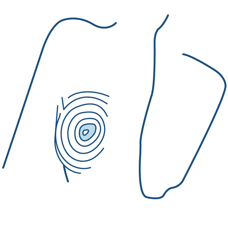 Nipple Areolar complex